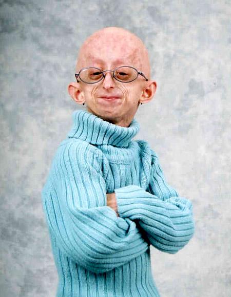 progeria8.jpg